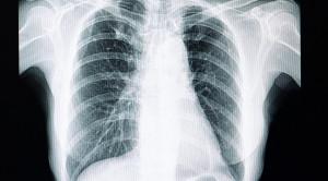 Fibrosis Paru Pada Pasien COVID-19