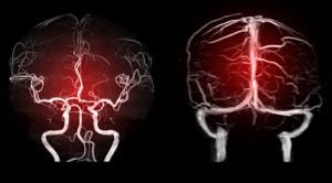 Trombosis Vena Serebri dan Trombosis Vena Porta Pasca COVID-19 - Telaah Jurnal Alomedika