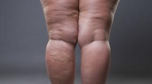 Perbandingan Antikoagulan Direk Oral dan Antikoagulan Tradisional pada Pasien Obesitas Morbid dengan Tromboemboli Vena – Telaah Jurnal Alomedika