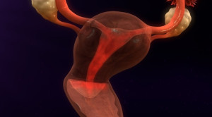 Red Flag Perdarahan Intermenstrual