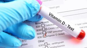 Skrining Rutin Vitamin D: Apakah Perlu?