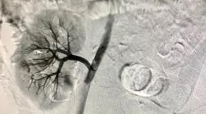 Peran Pemeriksaan Angiografi Perfusi Renal dan Indikator Biokimia dalam Deteksi Dini Nefropati Diabetik – Telaah Jurnal Alomedika