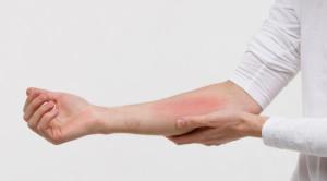 ตอบทุกข้อสงสัยในการดูแลผิวแพ้ง่ายให้มีสุขภาพดี