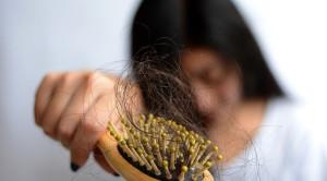 Rambut Rontok, Keluhan yang Banyak Ditanyakan Secara Telekonsultasi Selama Pandemi COVID-19
