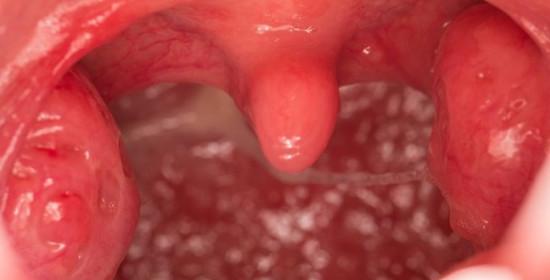 Pastikan Tonsilektomi Dilakukan sesuai Kebutuhan Pasien