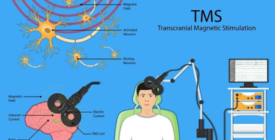 Penggunaan Non Invasive Brain Stimulation (NIBS) pada Gangguan Cemas Menyeluruh
