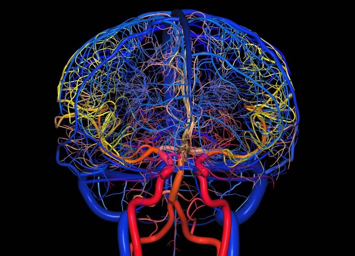 Проблемы с сосудами головного мозга: симптомы, причины, лечение