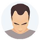 Hair Loss Grade or Level 2