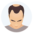 Hair Loss Grade or Level 3