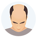 Hair Loss Grade or Level 4