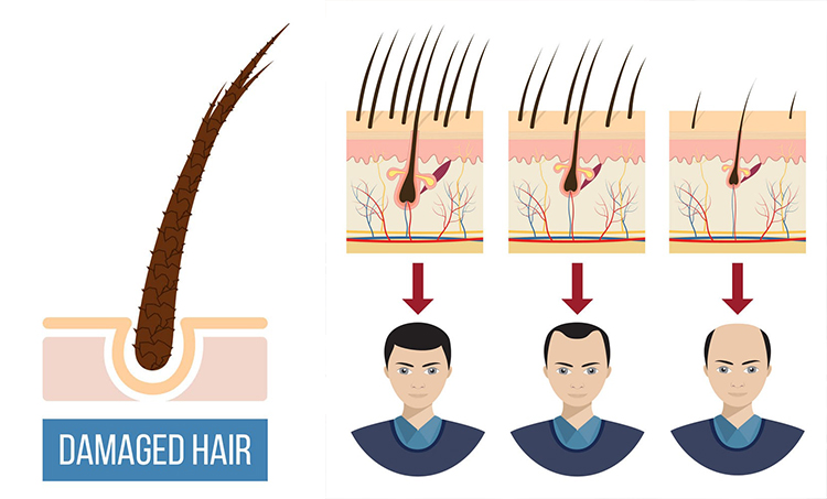 Trichos Solution For Hair Loss Causes