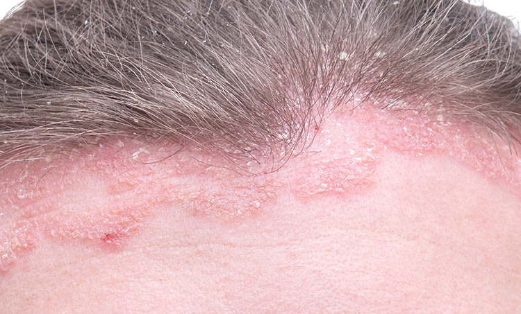 Trichos Solution For Dermatitis Hair Loss