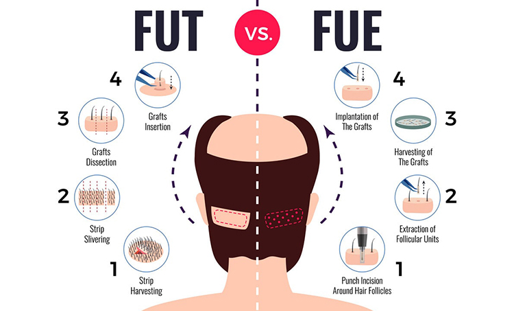 FUT Hair Transplant in Hyderabad