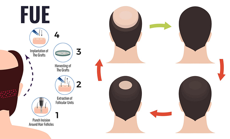 Best Fue Hair Transplant in Hyderabad