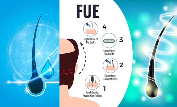 Advanced Bio Fue Hair Transplant in Hyderabad