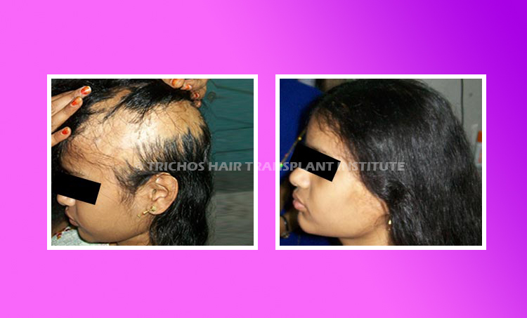 Best Burn Scar Alopecia Treatment in Hyderabad