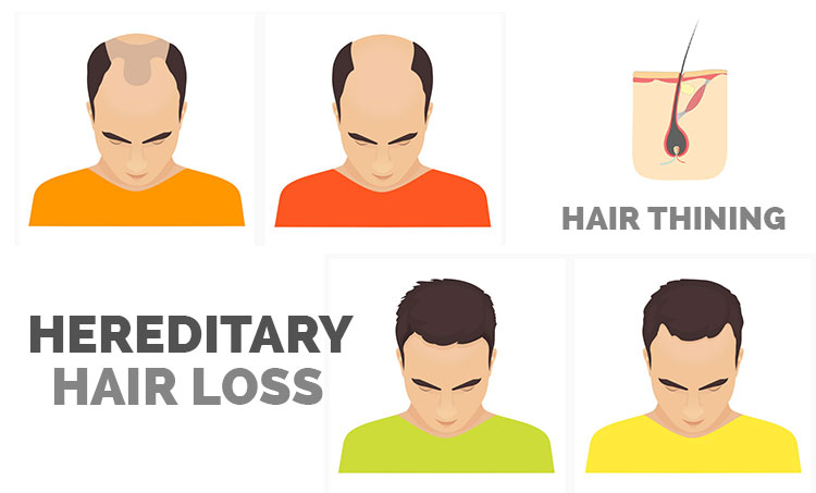 Best Hair Clinic in Hyderabad For Androgenic Alopecia