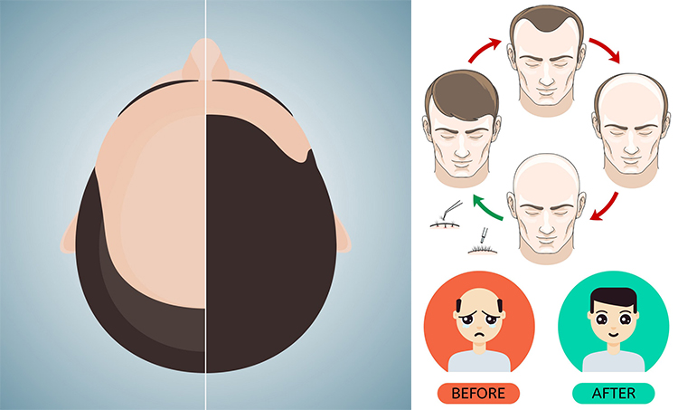 Best Hair Loss Treatment for Men in Hyderabad