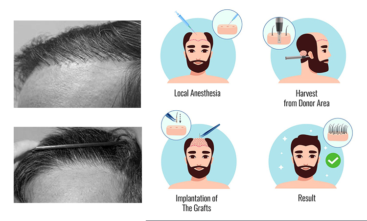 Best Corrective Hair Restoration Surgery in Hyderabad