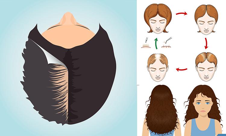 Trichos Female Hair Loss Treatment in Hyderabad
