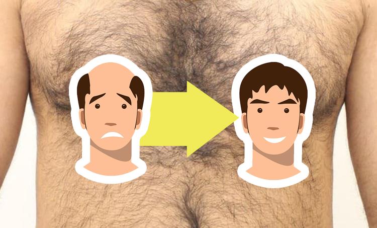 Trichos Solutions: Body Hair Transplant in Hyderabad