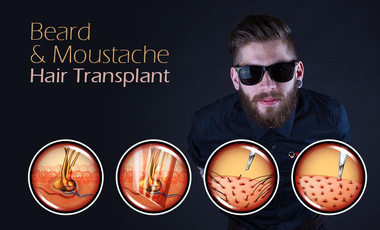 Beard & Moustache Hair Transplants in Hyderabad