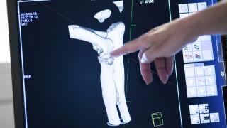 bild från datortomografi med hand som pekar på bilden