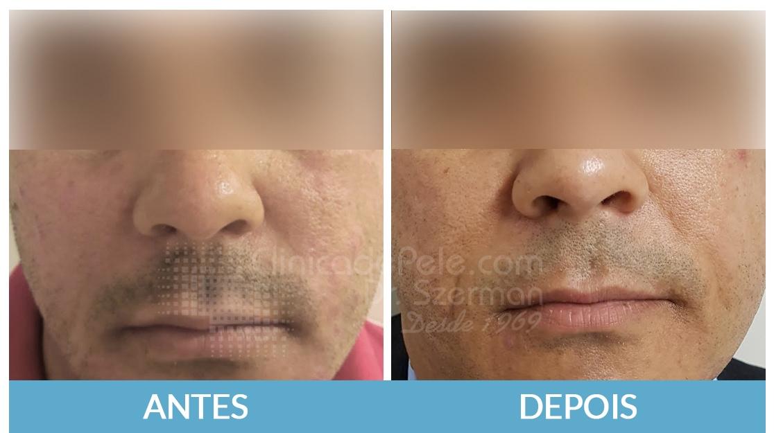 cicatrizes-de-acne1_pfgrzh