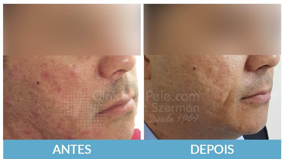 cicatrizes-de-acne2_eum5cb