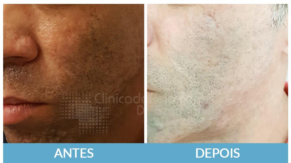 cicatrizes-de-acne9_fpzn27