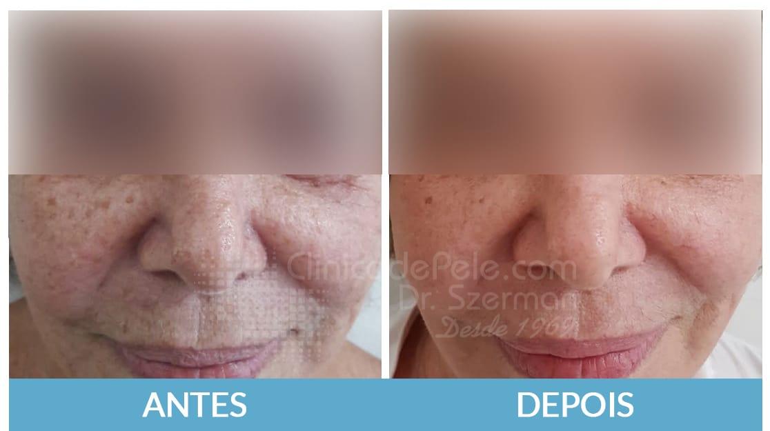 Laser_CO2_cicatrizes_de_acne_scxtni
