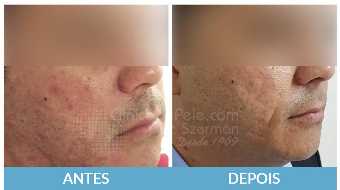 Laser_CO2_cicatrizes_de_acne_v8yl8w