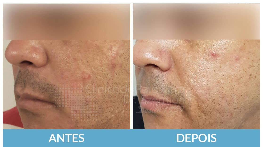 Laser_CO2_cicatrizes_de_acne_ln4jgs