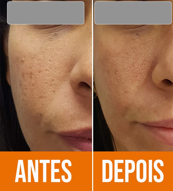 cicatrizes de acne antes e depois