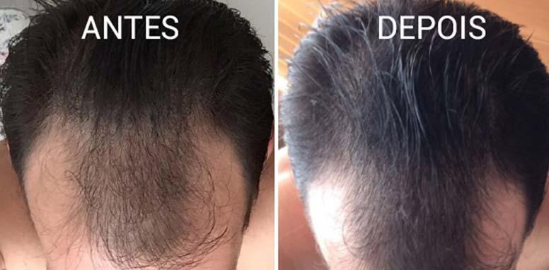 alopecia_queda_de_cabelo_pnwskt_A_vqhgdq_mkwqr8