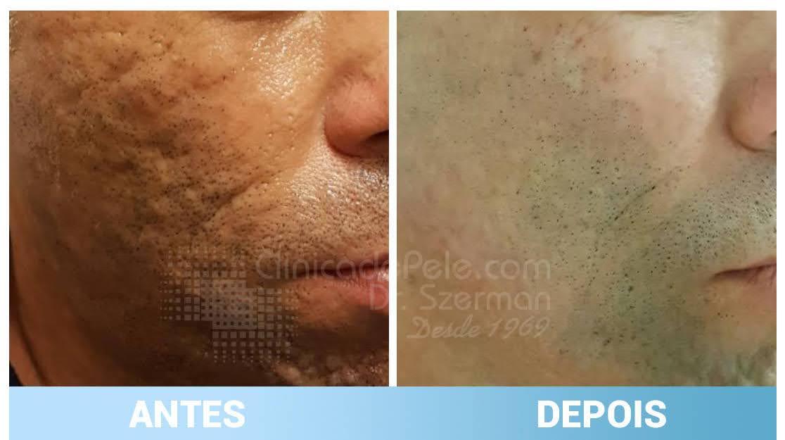 antes e depois cicatrizes de acne