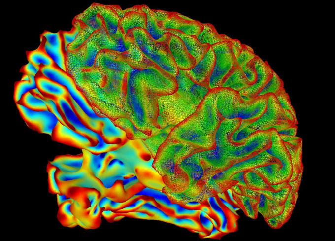 Multi-color image (processed) of the whole brain generated by functional Magnetic Resonance Imaging. CREDIT: National Institute of Mental Health, National Institutes of Health.
