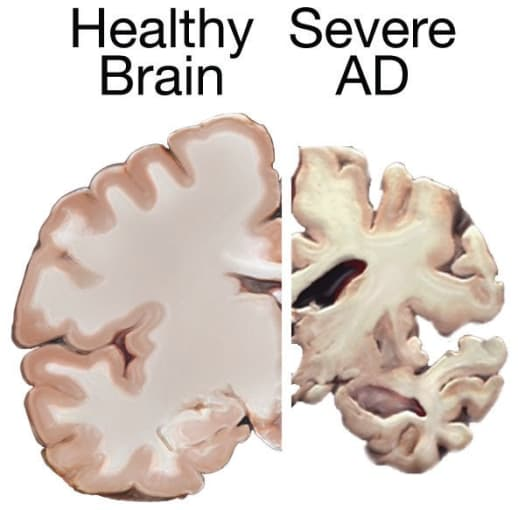 Comparison of a healthy brain and a brain with severe Alzheimer's Disease. CREDIT: National Institute on Aging, National Institutes of Health.