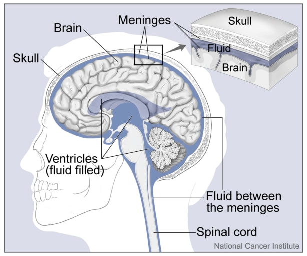 Brain diagram showing the ventricles that are lined with ependymal cells, where pediatric ependymoma can arise. CREDIT: Alan Hoofring, https://visualsonline.cancer.gov/details.cfm?imageid=4279.