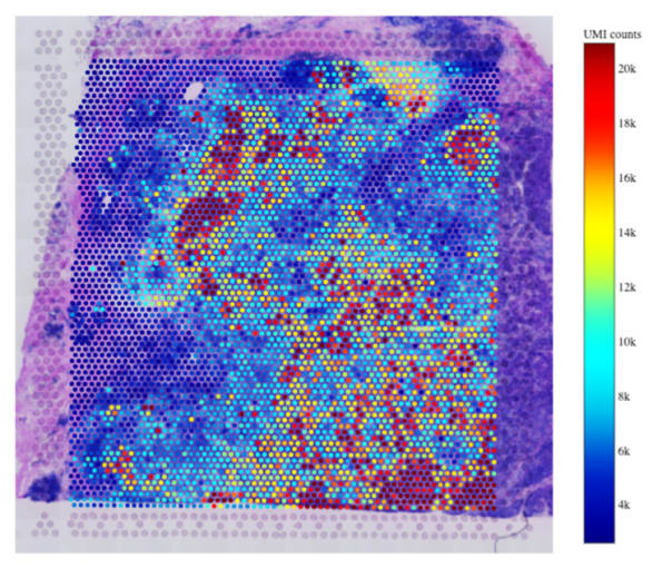 Visualization of gene expression heatmap on a Visium Spatial Gene Expression slide.