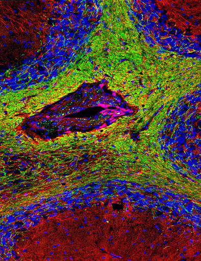 This is a photograph of demyelinated neurons forming a dark lesion (center) in a field of otherwise healthy neurons (green). CREDIT: Maria Traka, University of Chicago