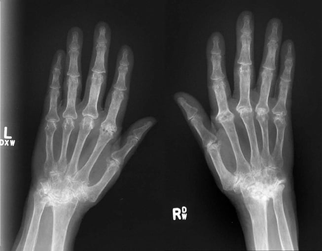 This image shows severe, rapidly progressive RA with severe damage to finger joints eight years after initial diagnosis. CREDIT: University College Dublin