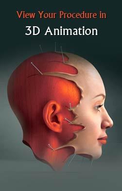 mycosmeticsurgery