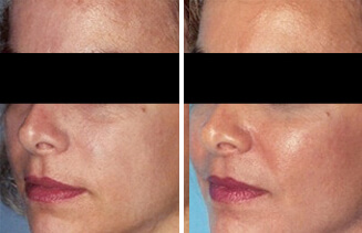 Cheek Enhancement Surgery,Cheek Implant,Cheek Augmentation in