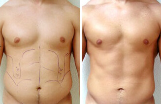 Abdominal Etching for Men,Six Pack Abs Surgery in Lucknow