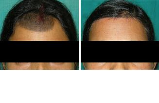 Surgical Correction of Mole or Nevi,Mole Surgery in Lucknow,Noida