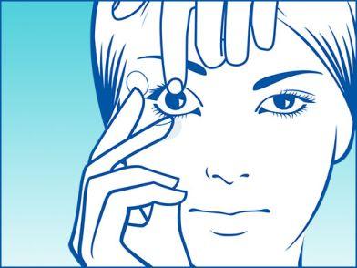 mehr Fotos neues Hoch Kundschaft zuerst Kontaktlinsen einsetzen und rausnehmen Tipps und Video | Apollo