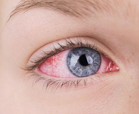 Ursachen für Rote Augen