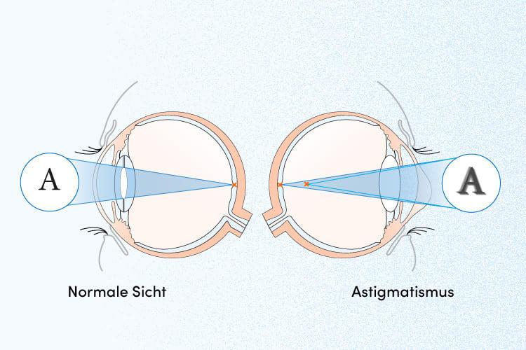 természetes látás helyreállítása, aki segített