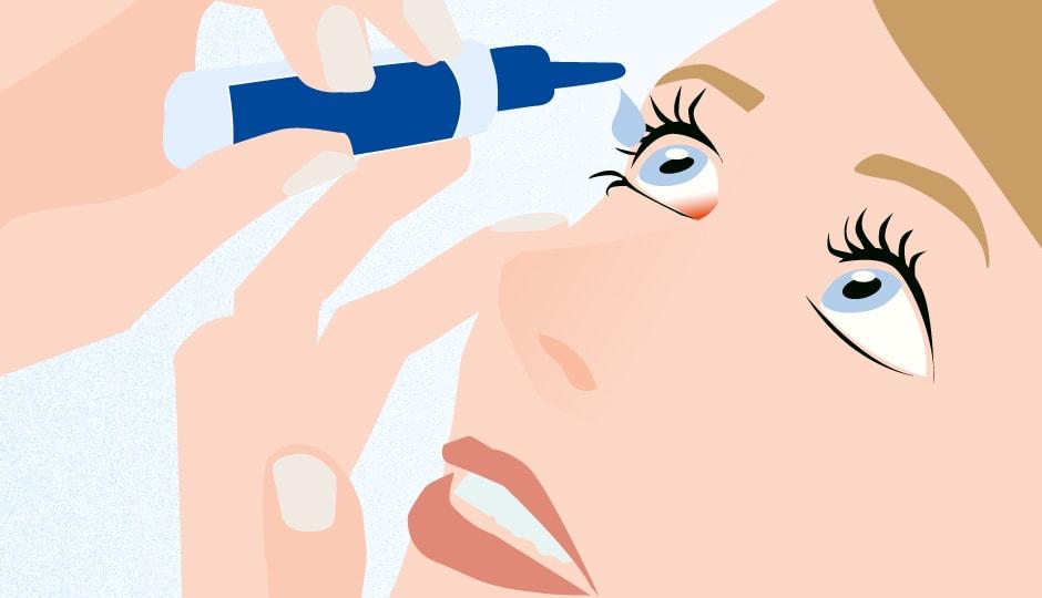 RoteAugen Illustration Augentropen